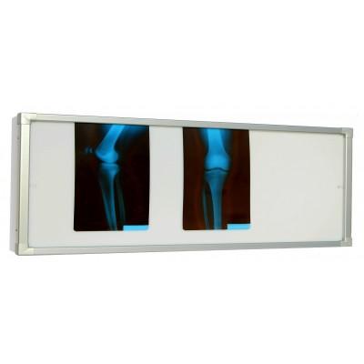 Negativoscopio diafanoscopio 180x42 cm - orizzontale 2 settori - verniciat