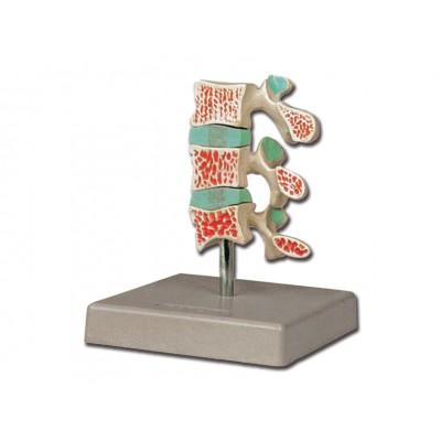 MODELLO PATOLOGIA OSTEOPOROSI - SCALA 1:1 - 3 STADI - Dim: 12x12xh15cm