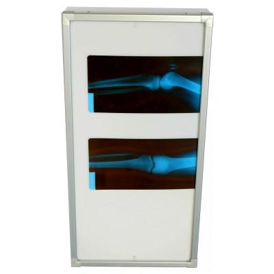 Negativoscopio diafanoscopio 42x120 cm - verticale - verniciato