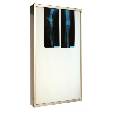 Negativoscopio diafanoscopio 42x90 cm - verticale - acciaio inox