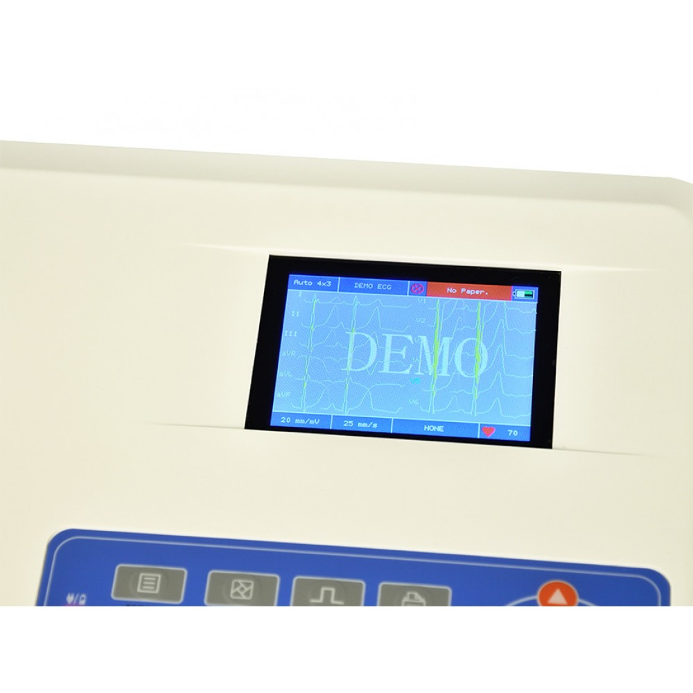 ECG ELETTROCARDIOGRAFO PORTATILE CONTEC 300G - 3 canali con display per 12 derivazioni