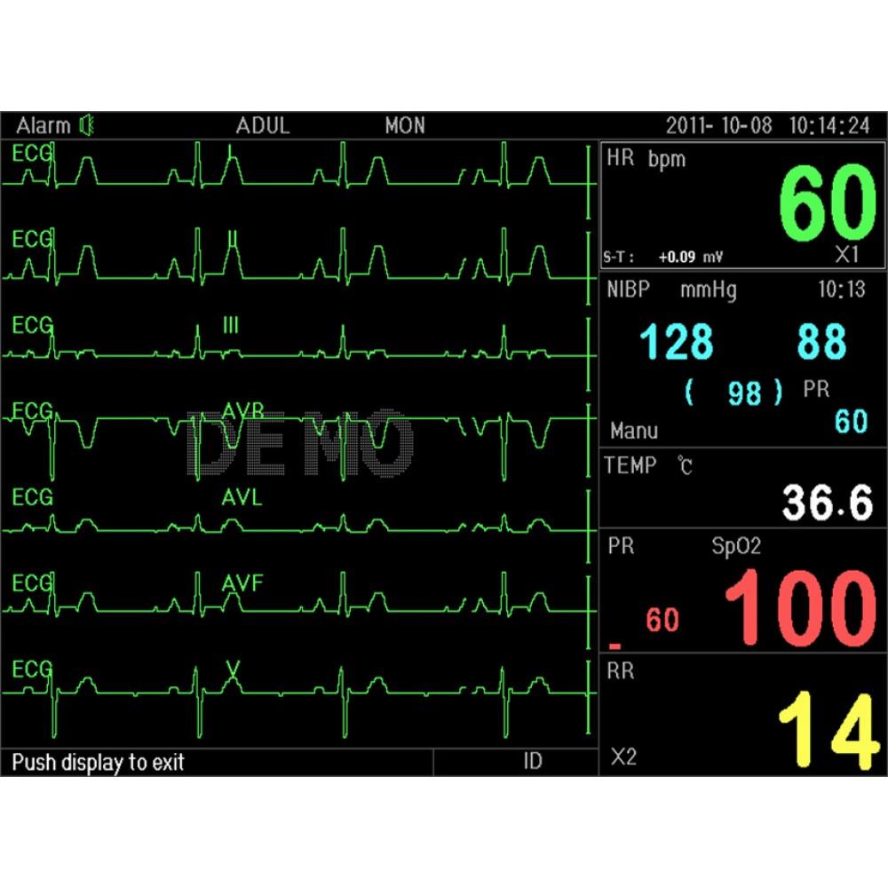 MONITOR MULTIPARAMETRICO PC-3000 (Parametri: ECG, RESP, SpO2, NIBP, 2-TEMP, PR)