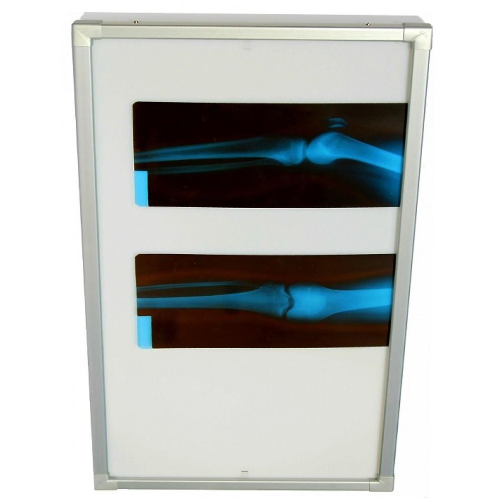 Negativoscopio diafanoscopio 60x120 cm - verticale - verniciato