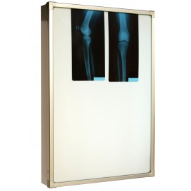 Negativoscopio diafanoscopio 60x90 cm - verticale - acciaio inox