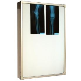 Negativoscopio diafanoscopio 60x90 cm - verticale - verniciato