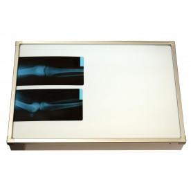 Negativoscopio diafanoscopio 70x42 cm - orizzontale - acciaio inox