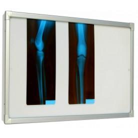 Negativoscopio diafanoscopio 90x42 cm - orizzontale - verniciato