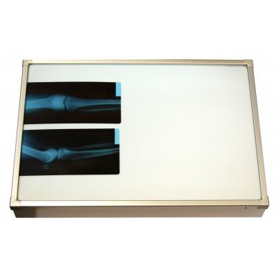 Negativoscopio diafanoscopio 120x84 cm - orizzontale 2 settori - acciaio