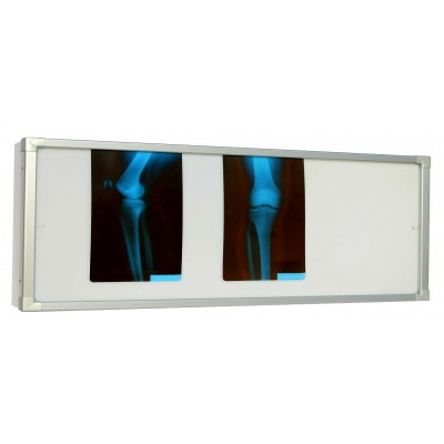 Negativoscopio diafanoscopio 180x42 cm - orizzontale 2 settori - acciaio inox