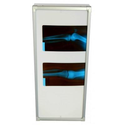 Negativoscopio diafanoscopio 42x150 cm - verticale - verniciato