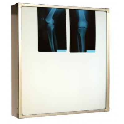 Negativoscopio diafanoscopio 90x84 cm - orizzontale 2 settori - acciaio in