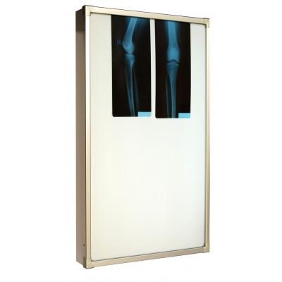 Negativoscopio diafanoscopio 60x120 cm - verticale - acciaio inox