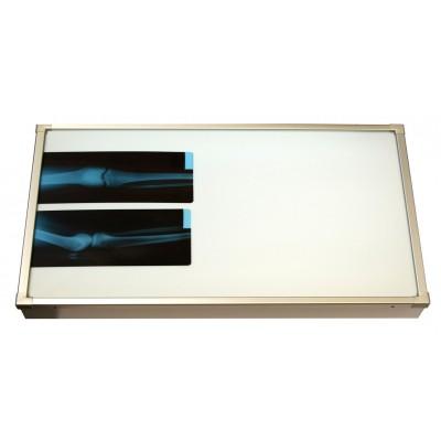 Negativoscopio diafanoscopio 90x42 cm - orizzontale - acciaio inox