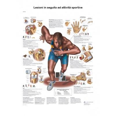 POSTER LESIONI IN SEGUITO AD ATTIVITA FISICA - Dim: 50x67 cm
